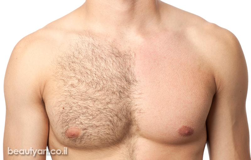 טיפולי הורדת שיער בשעווה מהפנים ומהגוף – לנשים ולגברים